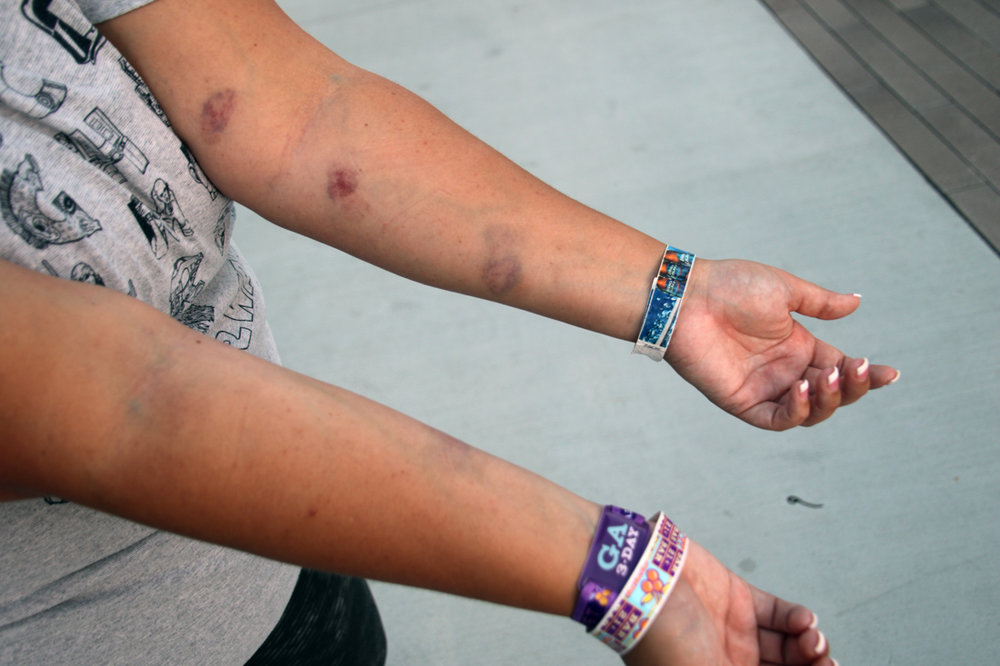 Still wearing her festival wristbands, Enslin shows her bruises sustained while fleeing the shooting. Photo by Alex Dominguez