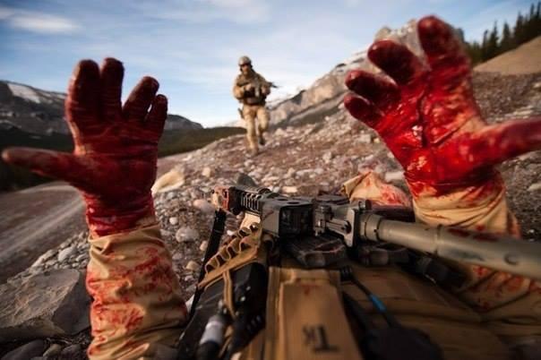 bloodyhands.JPG