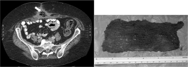 Computed tomography (CT) scan indicating infected tissue, which caused discharge in patient.  Pictured at right is the foreign object, here a typically-sized surgical sponge.