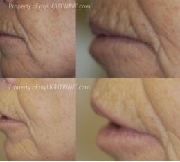 12 Treatments over 5 week period. Wrinkle Protocol