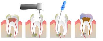 Pyrmont Dentist | Emergency Dentist | Root Canal Treatment