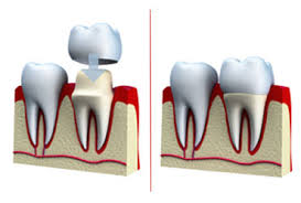 Pyrmont Dentist | Dental Crown | Dental Treatment