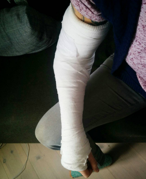 My cast. Solid on the underneath, soft on top. First time in a cast for me, so learning how to shower and so on was interesting. Sleeping was a nightmare