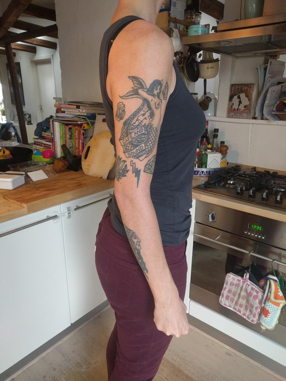 olecranon-fracture-broken-elbow.jpg