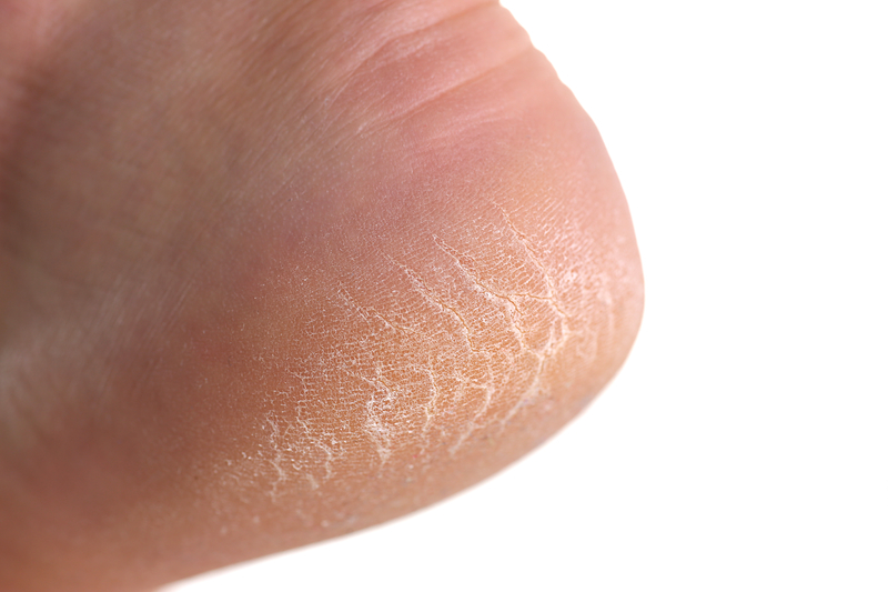 Dry/Cracked Heels - Dry feet are generally a symptom of another problem, and if you have dry feet you may experience additional symptoms such as: Itchiness, Redness, Cracks in the feet (fissures), Rough skin, Flaky skin, Peeling skin, or Rash (usually brought on by itching). Problem worsens in winter months.