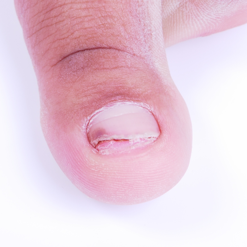 Ingrown Nails - Ingrown toenails are a common condition in which the corner or side of a toenail grows into the soft flesh. The result is pain, redness, swelling and, sometimes, an infection.