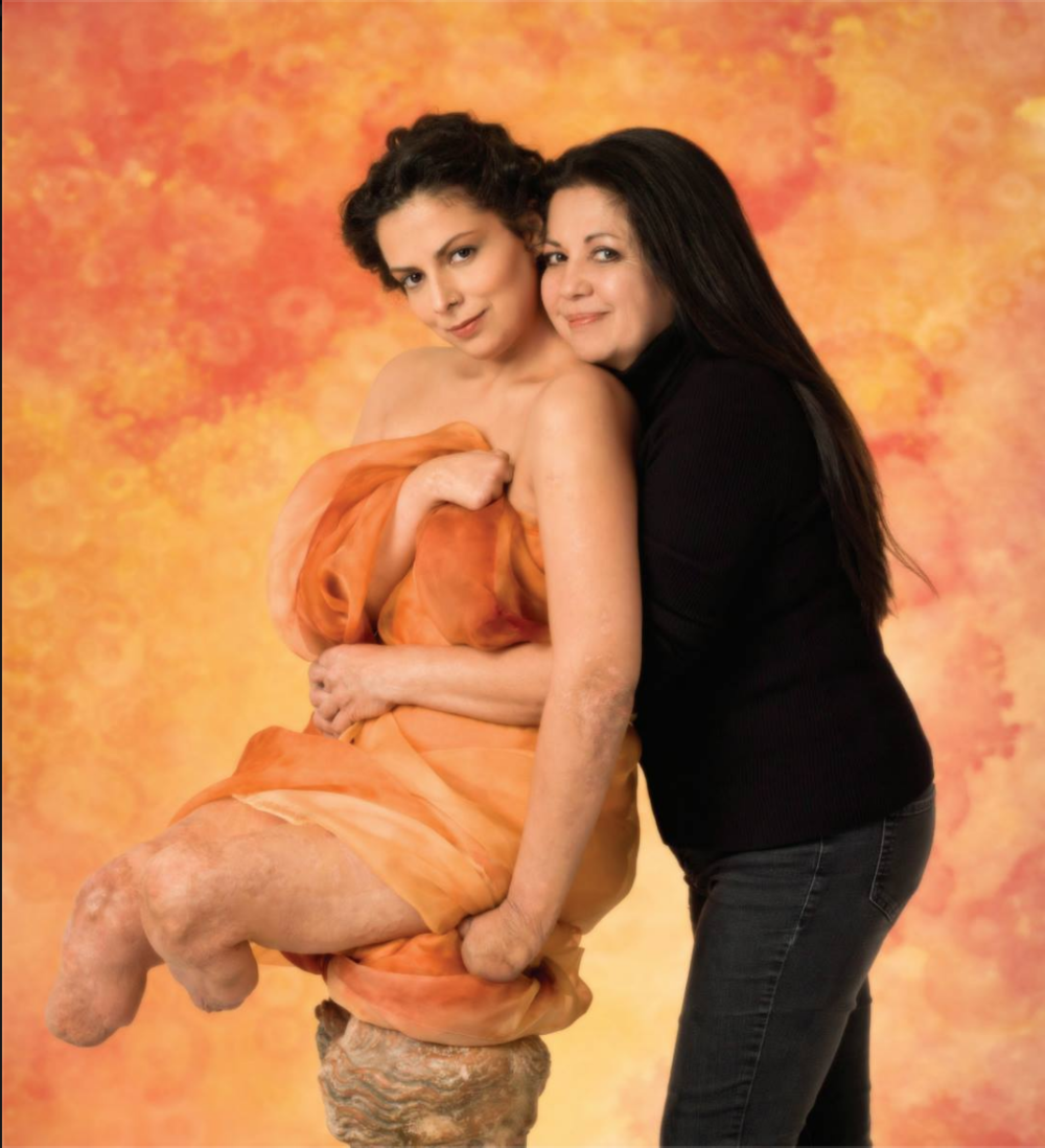 Jamie and patsy at Anne geddes' photo-shoot 2013