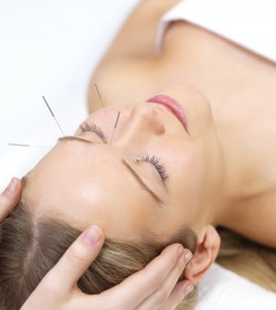 Acupuncture (2 available)