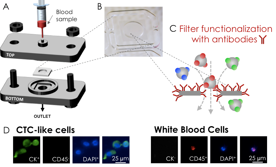 Circulating Tumor Cell Capture.   (A)   3D printed filtration cartridge and   (B)   a polymer filter. Blood samples spiked with cancer cells are filtered using a syringe pump. Filters are used pristine or   (C)   functionalized with antibodies. Capture performances are determined by counting cells captured on filter. Cells are immunostained and identified using fluorescence microscopy.   (D)   CTC-like cells express cytokeratin (CK) and have a nucleus (DAPI) while WBCS express the cluster of differentiation 45 (CD450, also have a nucleus (DAPI) but do not express CK.