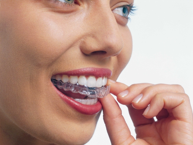 Clear Braces (Invisalign) - Want to discreetly improve your smile?  This is the ultimate in terms of esthetic treatment.  Custom molded clear trays are tailored to your specific needs to move your teeth to their ideal positions.  Because of they are removable, patient compliance is extremely important to achieve desired results.