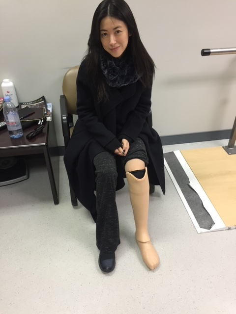 "Zhu Zhu fitted with her prosthetic leg for the film ""Two/One"""