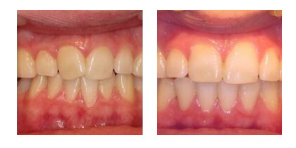 Case 2    This young man was unhappy with the way the front teeth were overlapping and crossed over. QST fixed braces were worn for seven months to align the teeth. He Is now proud of his smile and wishes he had done it sooner!