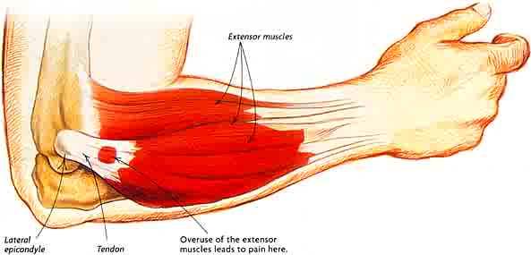 tennis-elbow-anatomy.jpg
