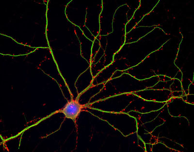 Figure 1. Hippocampal neuron stained with GFP for MAP2. Actin filaments are in red and DNA is in blue. The protein tags allow researchers to see MAP2 in the neuron's long projections, or dendrites, and see that actin localizes in clumps along the dendrites at structures called spines. The DNA stain shows the cell's nucleus.   Image via Halpain lab at UCSD  .