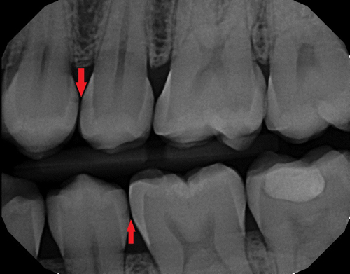 This X-ray shows decay (the dark areas on the teeth), which often starts between the teeth at the contact where bacteria can hide from brushing.  To the right of the top arrow is a cavity.  To the left of the bottom arrow is a smaller area of tooth decay that may be maintainable and may not need a filling yet.