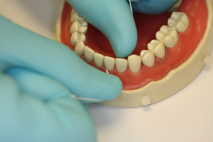 4.   Floss up and down the sides of each tooth and gently into the gums.  Shape to floss along the contour of the tooth so it can clean as much plaque as possible.