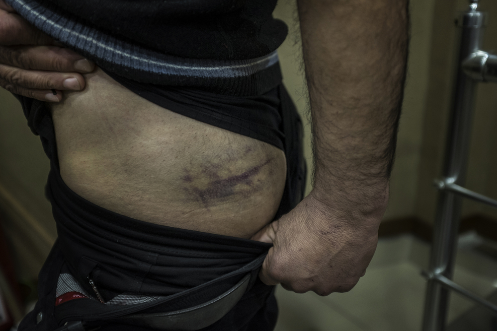 Ferhad shows bruises he says were inflicted by Bulgarian border police when he tried to cross the border.