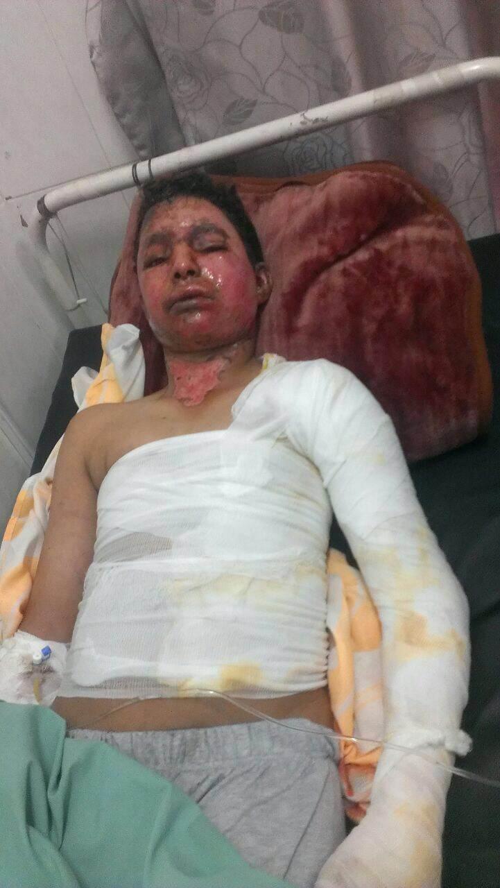 Abdullah Saleh al-Jehafi, 16 ans, souffre de terribles brûlures