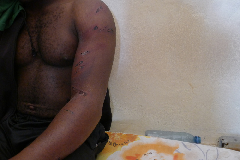 A detainee shows the injuries he has sustained from beatings after just four days in the detention centre.