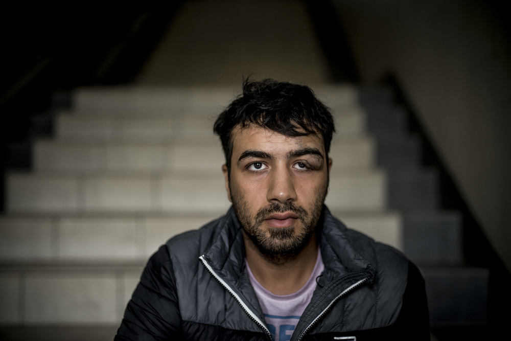 Hazem still has a wound above his left eye from a beating by Syrian police officers over a year ago