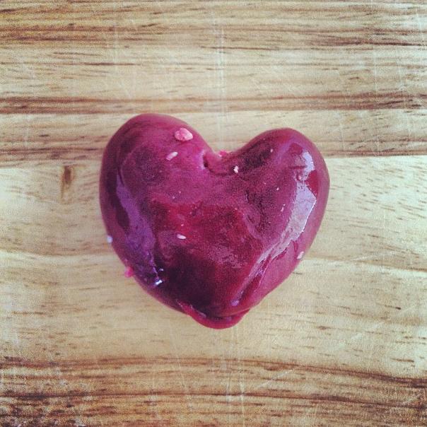 Heart 12 - Kidney