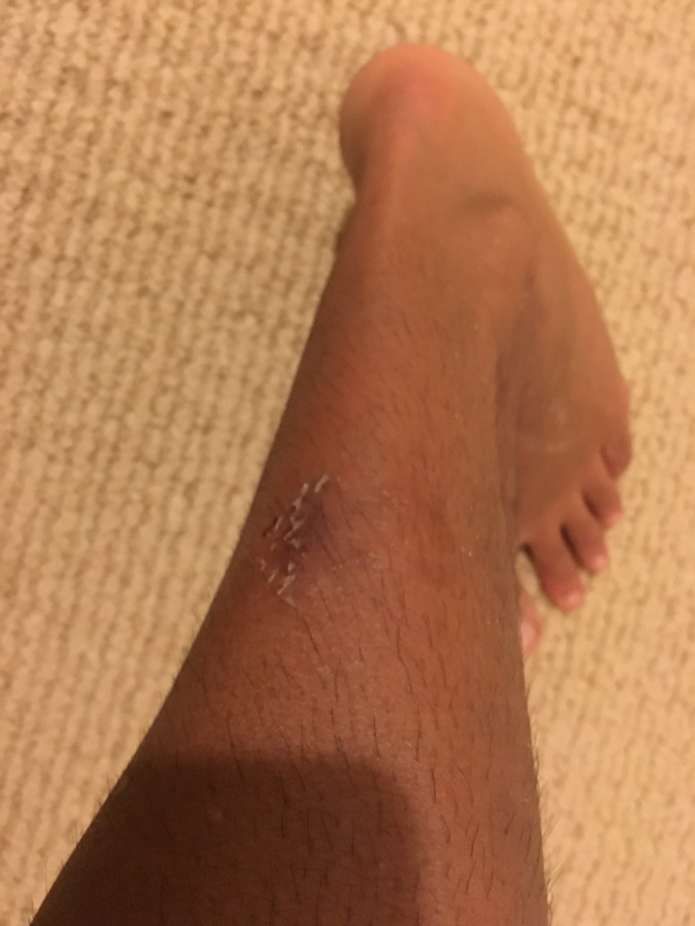 Surfed in some semi sketchy evening water, trying not to get bit by anything.   End up coming home and neighbors dog got loose and took a cheap shot and bit me while I was facing away and in the dark.