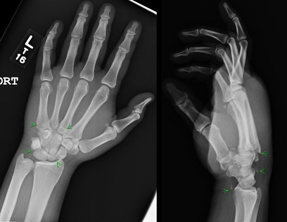 Wrist Injuries Chepla Hand Plastic Surgery