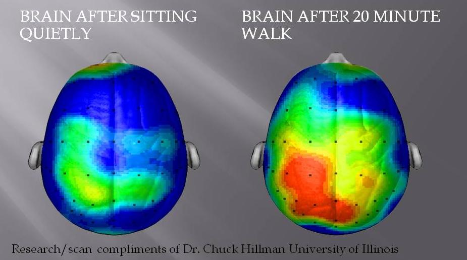 Photo from: neurobollocks.wordpress.com