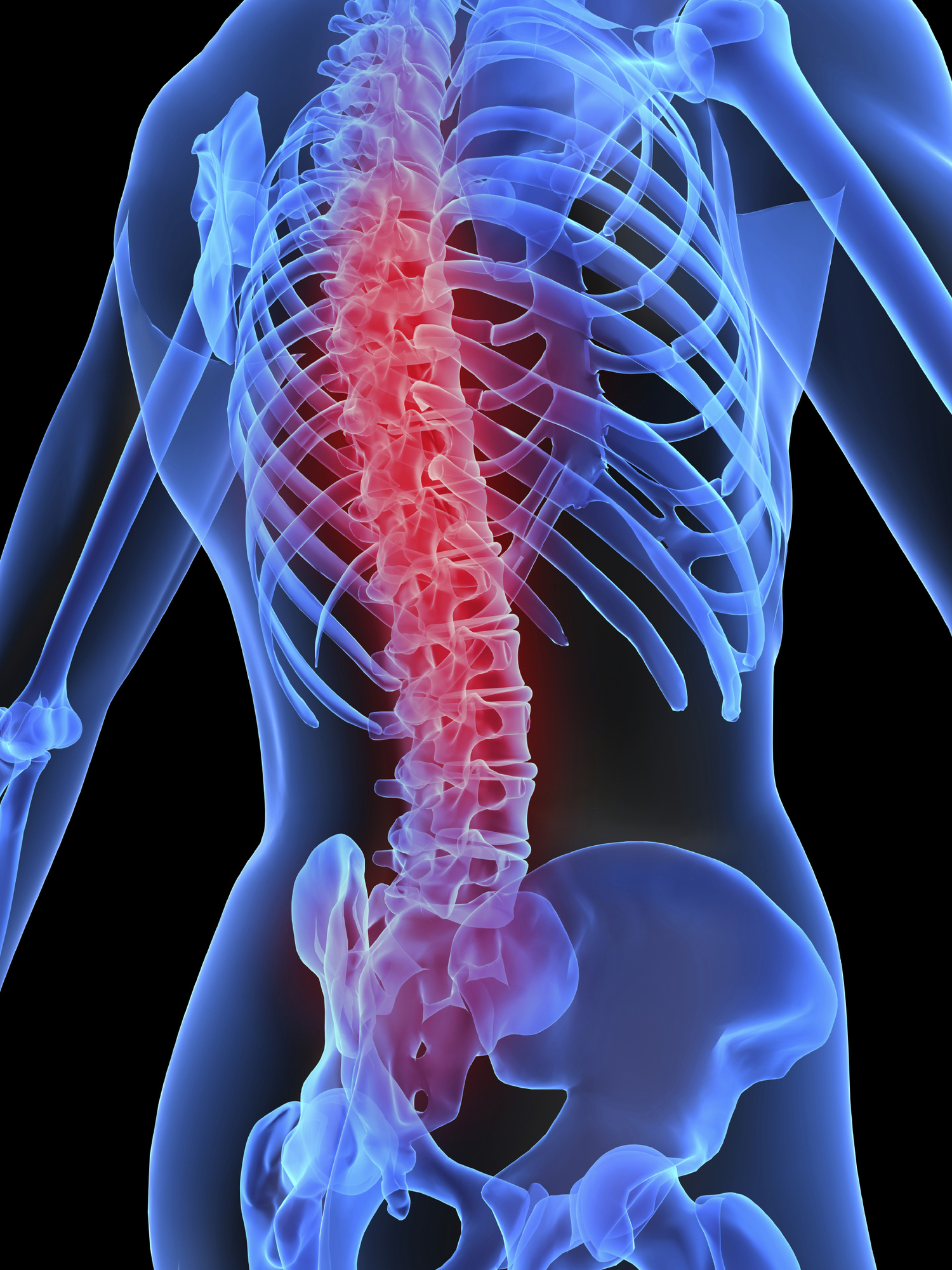 Spinal Cord Injury — Fornos Law Firm | Spinal Cord Injury Lawyers