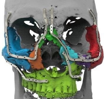 Placas de osteosíntesis.jpg