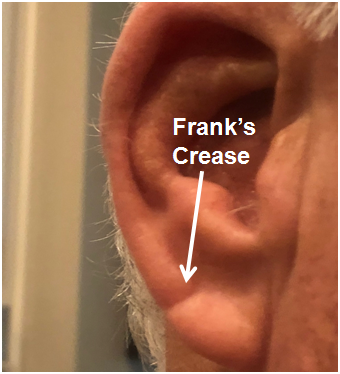 Franks Ear Crease Labeled. 2.png