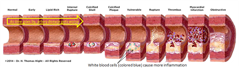 White blood cells cause more inflammation in blockage.png