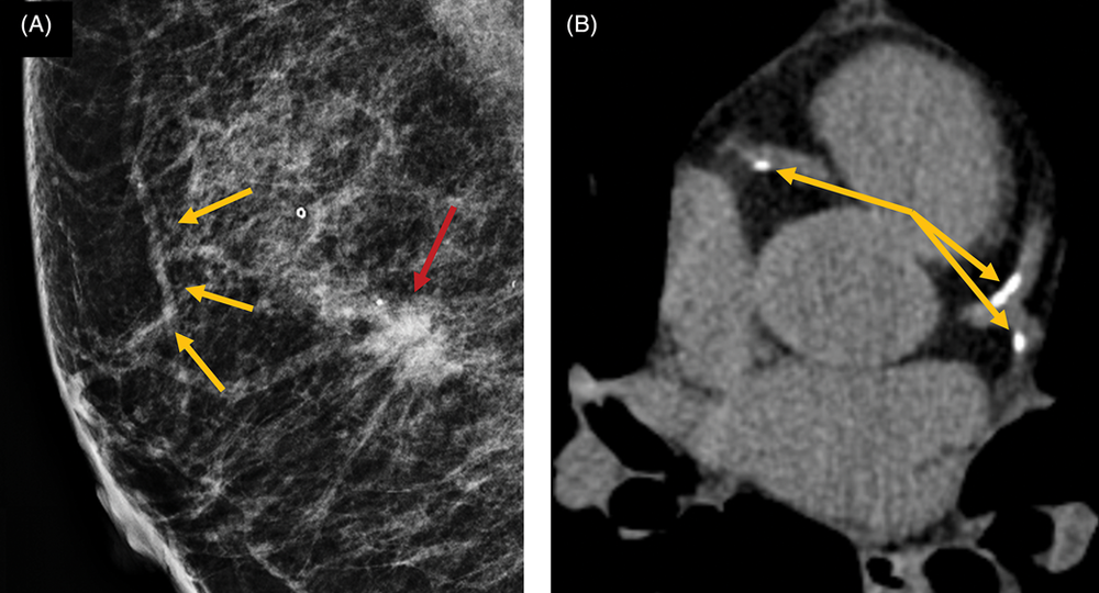 Mammogram on the left, with orange arrows highlighting breast artery calcification, the red arrow highlighting a lesion which when biopsied, proved to be cancer. Heart coronary calcium scan is on the right, with orange arrows highlighting coronary artery calcium deposits. Picture from an excellent review article of the currently available scientific studies on breast calcium and heart artery calcium. © 2017 Wiley Periodicals, Inc. (see ref 9 below)