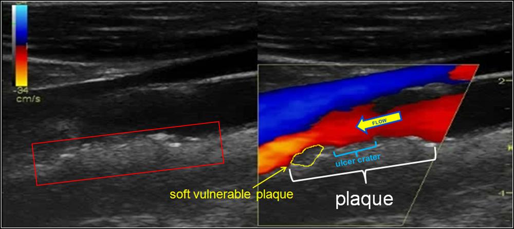 ATA US IMT plaque w flow obstruction.png