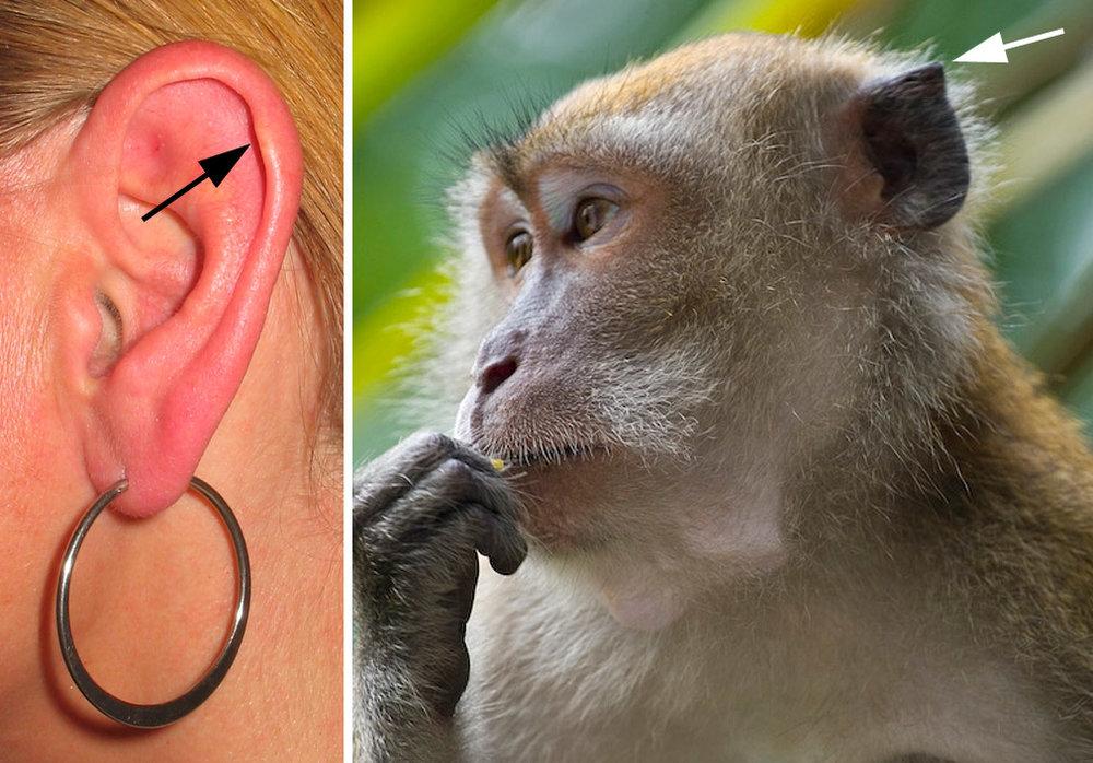 Darwin's tubercle. Image by Luis Fernandez.