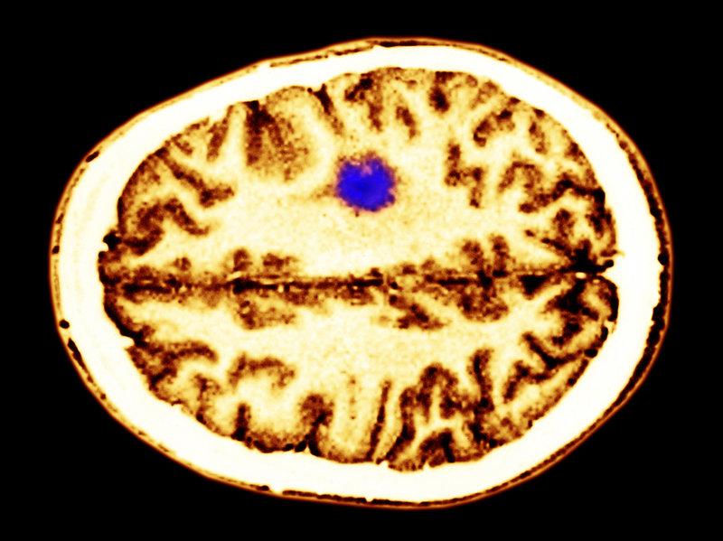 glioma-tumor-4a5408ebd9dacbe36af7c7e8a31cf804b9d572c6-s800-c85.jpg