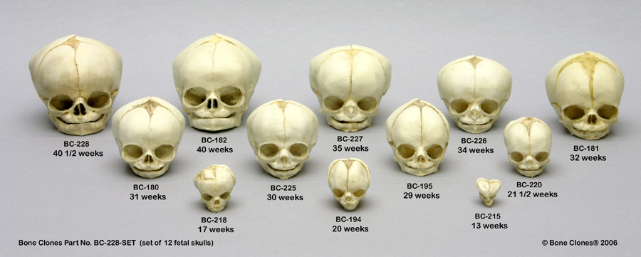 Boneclones Neat Fetal Skull Set Collect Them All I Just