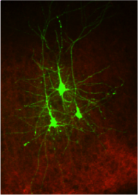 Cortical neurons -  H.Adesknik