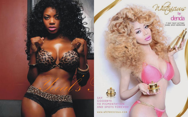 Dencia before and after lightening her skin.