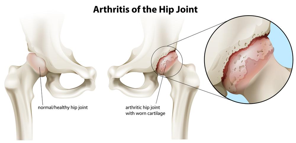 hip pain treatment nashville