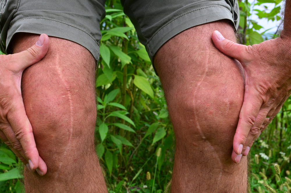 scar tissue pain treatment