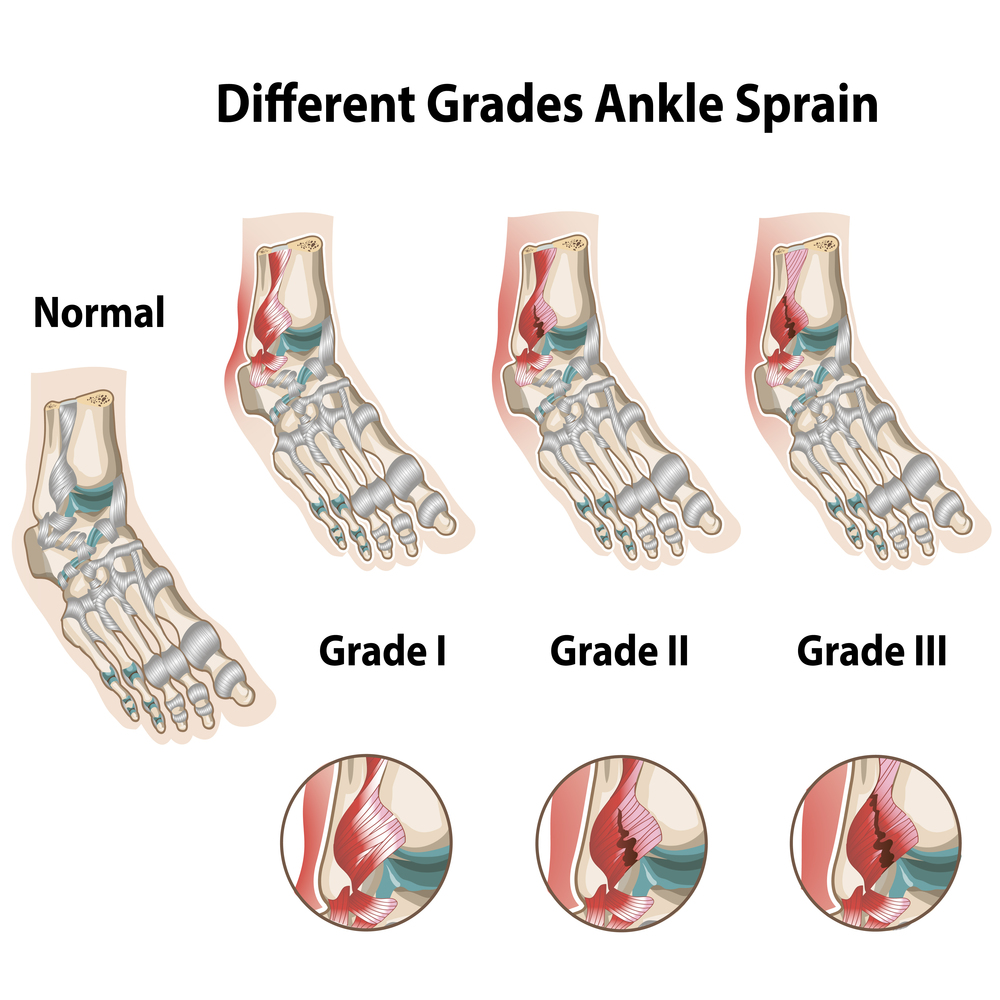 Laser Therapy for Ankle Sprain