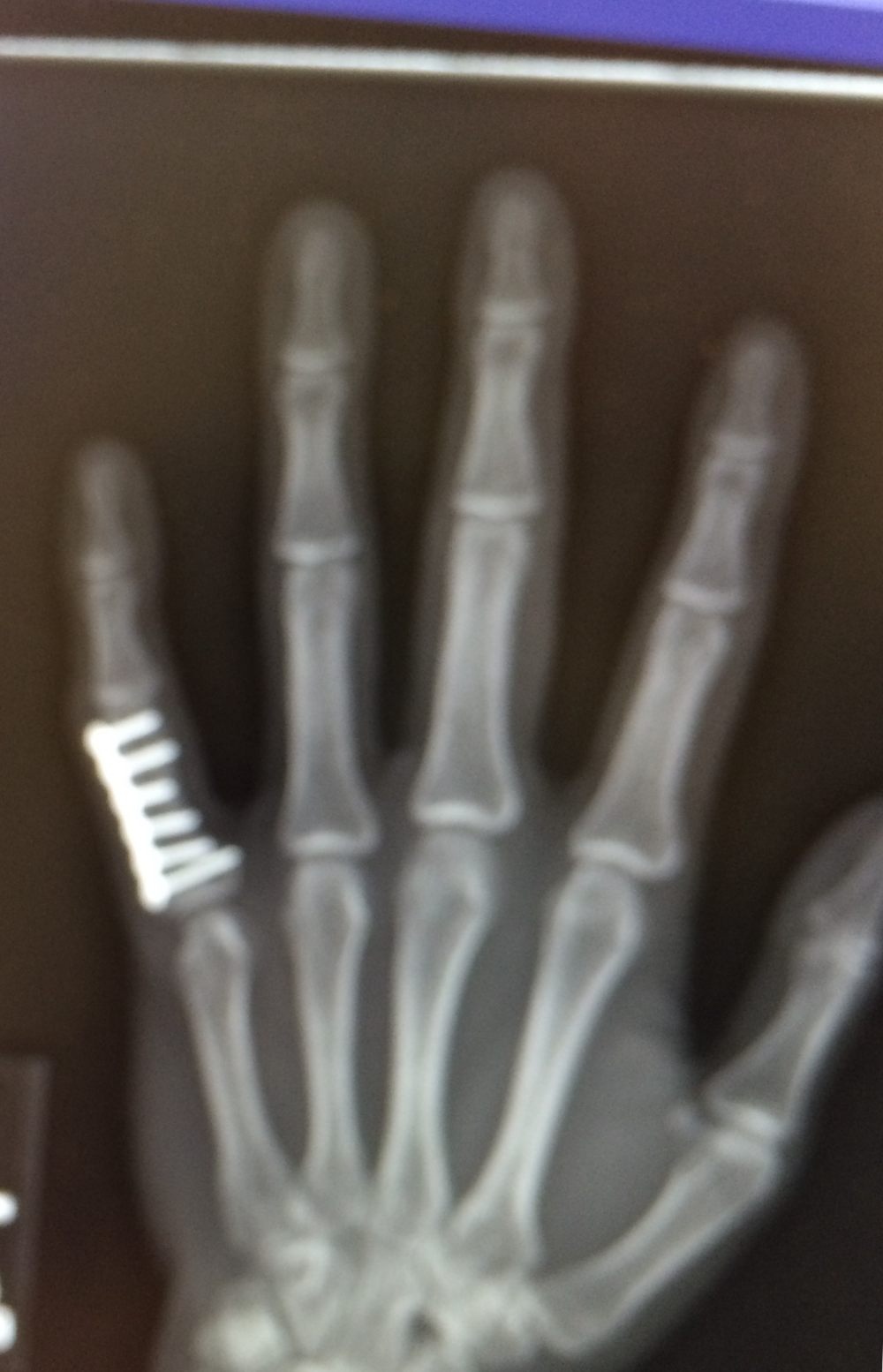 reconstructed finger
