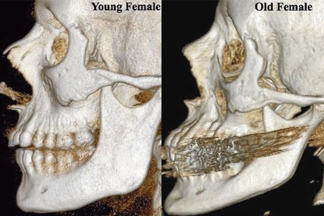 Skeletal changes in the aging face.
