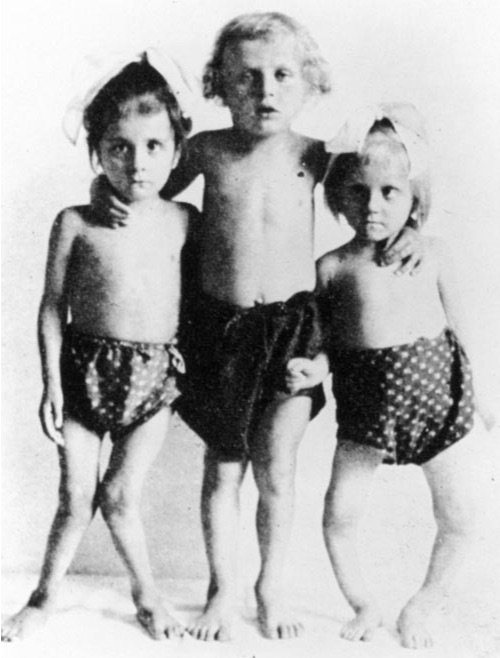 Typical presentation of 2 children with rickets. The child in the middle is normal; the children on both sides have severe muscle weakness and bone deformities, including bowed legs (right) and knock knees (left). From Holick M.Sunlight and vitamin D for bone health and prevention of autoimmune diseases, cancers, and cardiovascular disease.Am J Clin Nutr 2004;80(suppl):1678S–88S.