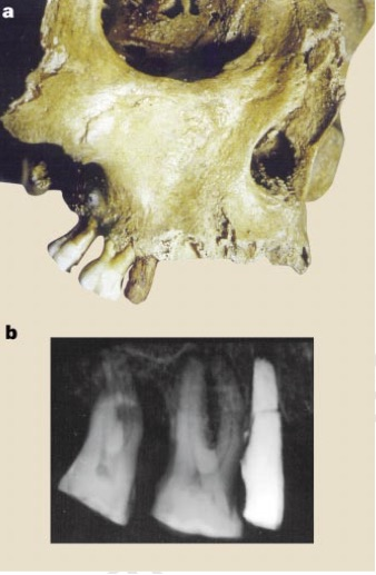 Details of the false tooth. a, Antero-lateral view of the skull. The iron-made dental implant is where the right second upper premolar would have been. b, Retro-alveolar X-ray of the right maxilla. The implant was dropped after being handled and it broke near its apical third into two pieces that were then glued together again. The line of breakage is visible on this X-ray picture. The alveolar wall and the pseudo-root fit perfectly together. Only an area one to two millimetres high in contact with the mesial alveolar wall shows an absence of contact between the bone and the implant. From Crubezy et al.  False teeth of the Roman World.    Nature   1998; 391; 29.