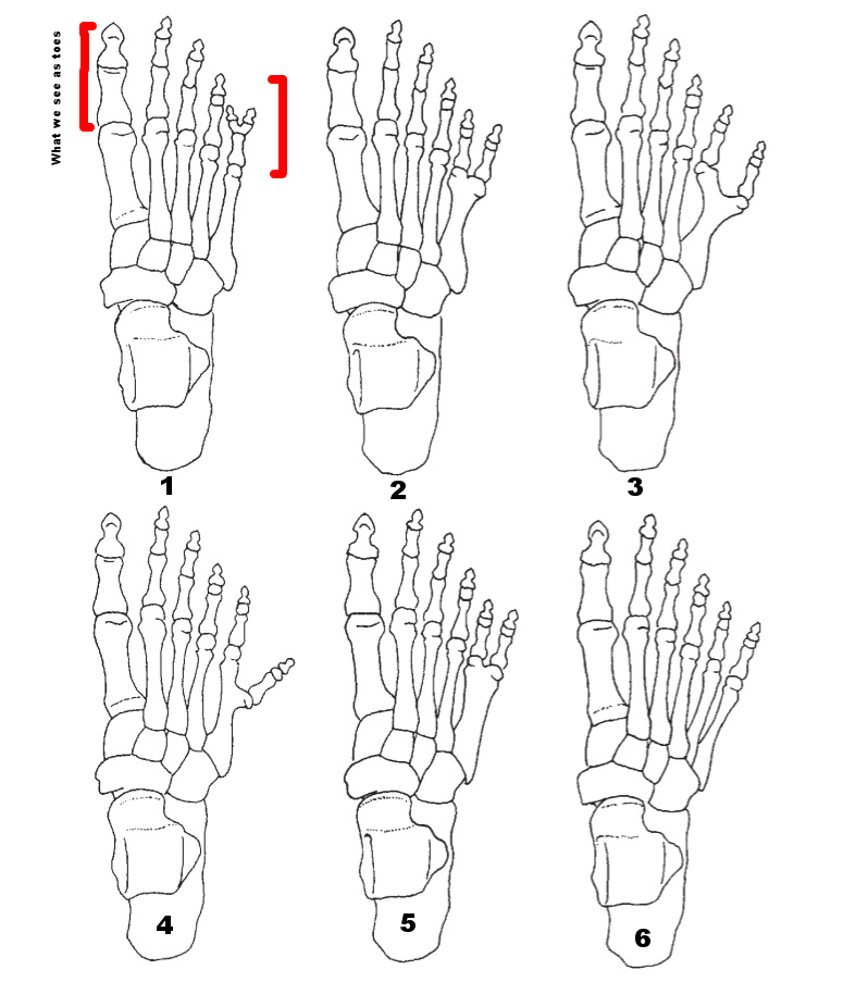Various forms of postaxial (ie. not on the big toe) Type A polydactyly of the foot, ranging from a partially duplicated fifth intermediate phalanx (top left) to a fully developed sixth digit, including the metatarsal (bottom right). From Case DT. Hill RJ. Merbs CF. Fong M. Polydactyly in the Prehistoric American Southwest.    Journal of Osteoarchaeology   2006: 6: 221–235.