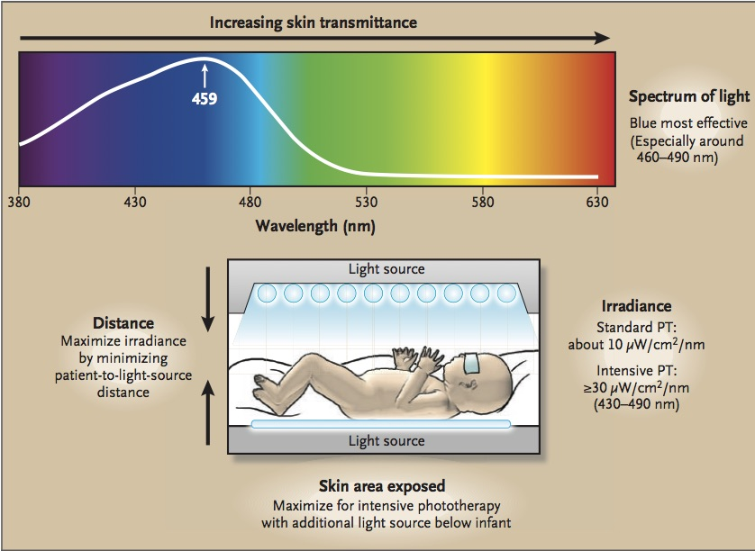 The absorbance spectrum of bilirubin bound to human serum albumin (white line) is shown superimposed on the spectrum of visible light. Clearly, blue light is most effective for phototherapy, but because the transmittance of skin increases with increasing wavelength, the best wavelengths to use are probably in the range of 460 to 490 nm. Term and near-term infants should be treated in a bassinet, not an incubator, to allow the light source to be brought to within 10 to 15 cm of the infant (except when halogen or tungsten lights are used), increasing irradiance and efficacy. For intensive phototherapy, an auxiliary light source (fiber-optic pad, light-emitting diode [LED] mattress, or special blue fluorescent tubes) can be placed below the infant or bassinet. If the infant is in an incubator, the light rays should be perpendicular to the surface of the incubator in order to minimize loss of efficacy due to reflectance. From Maisels and McDonagh. Phototherapy for Neonatal Jaundice. New England Journal of Medicine 2008.358;920-928.