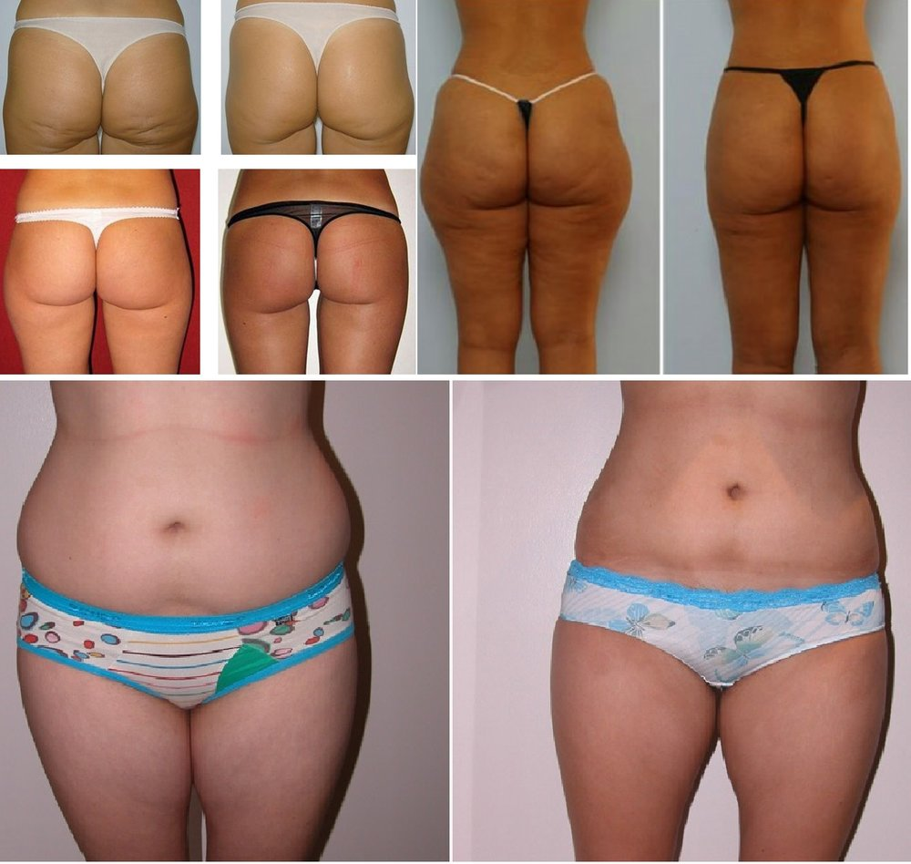 Non-Invasive Ultra Sound & Radio Frequency Fat, Cellulite Reduction and Sagging Skin Tightening - Instant Measurable Results. 10% on 6 or 12 pack treatments.