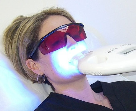 TEETH WHITENING - $69 (reg $99)